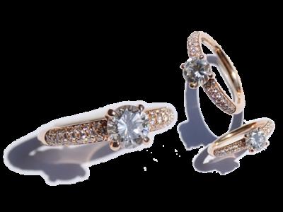 anelli-custom